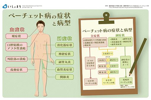 様々な症状を併発する【ベーチェット病の症状】