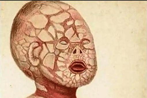 皮膚が魚の鱗のようになる【魚鱗癬の症状】