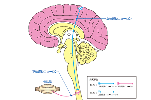 予後不良疾患の代表格【筋萎縮性側索硬化症の症状】