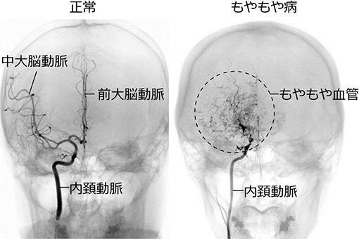脳の血管に生じる疾患【モヤモヤ病の症状】